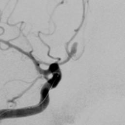 Saccular aneurysm