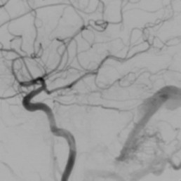 Brain Dural Arteriovenous Fistula
