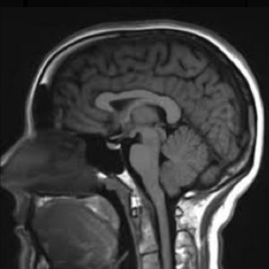 Diagnostic MRI image