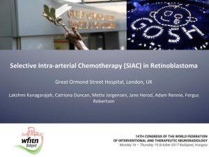 Selective Intra-arterial Chemotherapy (SIAC) in Retinoblastoma