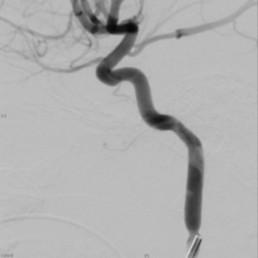 Intra-arterial Chemotherapy for Retinoblastoma